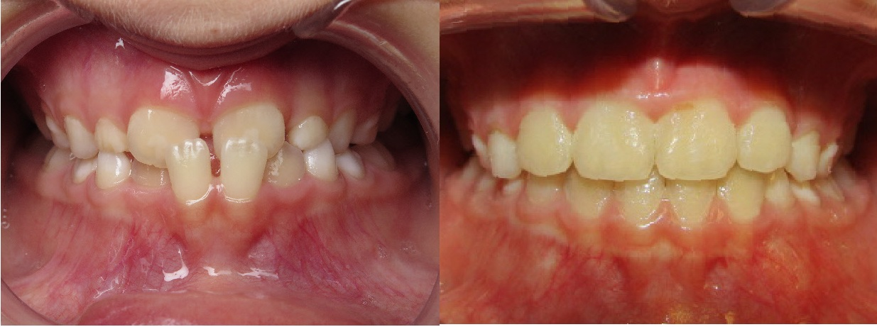Before And After Perez Orthodontics Tampa Fl